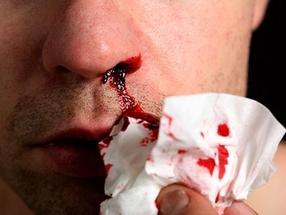 Что делать при обильном носовом кровотечении?