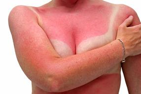 Что делать, если вы обгорели на солнце?