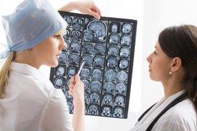 Как лечить эпилепсию?