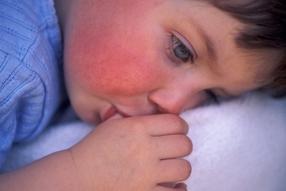 О чем говорят красные щечки у ребенка?