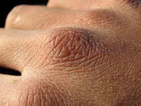 Почему сохнет кожа на руках?