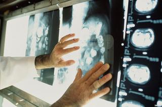 Смертность от рака становится ниже