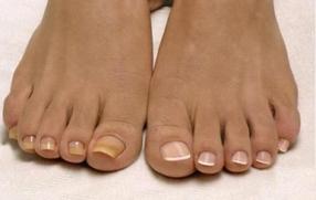 Вросший ноготь: диагностика и лечение